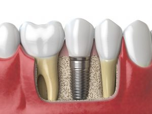 Dental implants can be used to replace on or more teeth lost to traumas, gum disease and injury