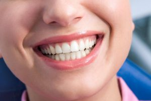 Achieve the perfect smile once again with Zygomatic implants