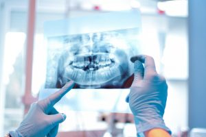implant retained dentures are becoming the new treatment choice for patients looking to replace their dentures