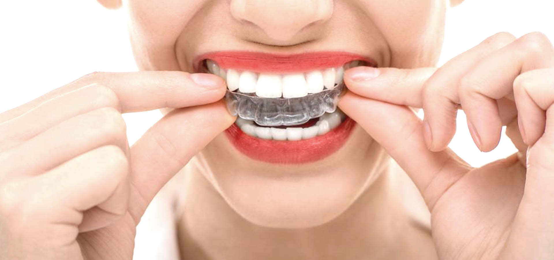 invisalign-clear-braces-east-molesey-surrey (1)