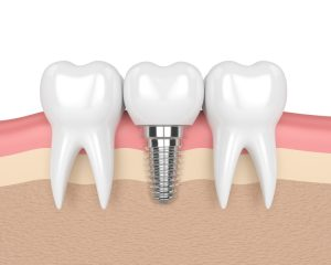 we use dental implants to restore smiles to perfection