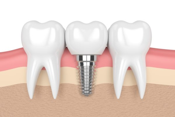 Treatment Single-Tooth Dental Implants