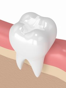 Dental implants are longlasting and can be maintained upwards of 20 years with the correct aftercare.