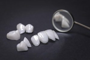 Dental implants offer the ideal solution to replace multiple missing teeth