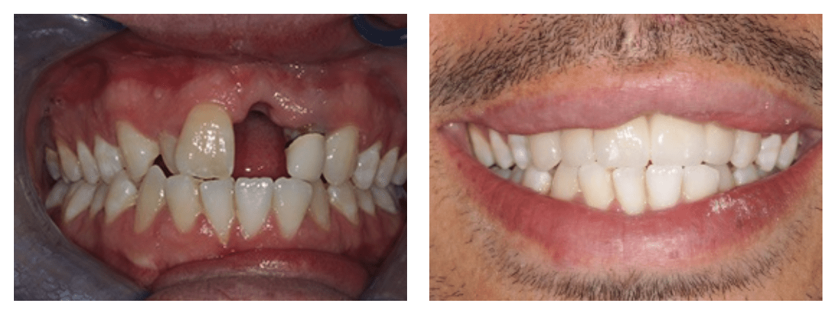 dental implant before and after image