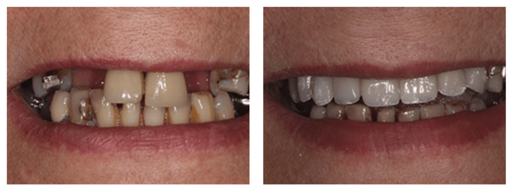 Missing teeth can be a serious confidence blow. Many will be aware of the damage one or more missing teeth can do to one's confidence, but the negative effects don't stop there, and can even contribute to broader health risks.