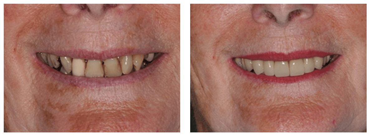 severe tooth decay can lead to tooth loss - the best way to treat this is with a dental implant
