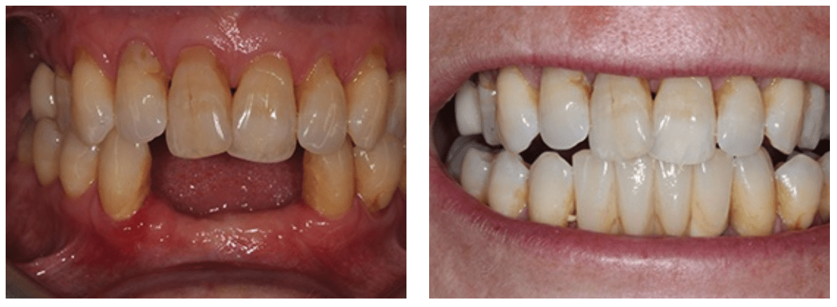 client that required dental implants in the lower jaw to replace missing teeth