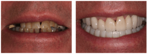Dental implant case study from a patient located in Epsom who was experienced severe tooth loss problems