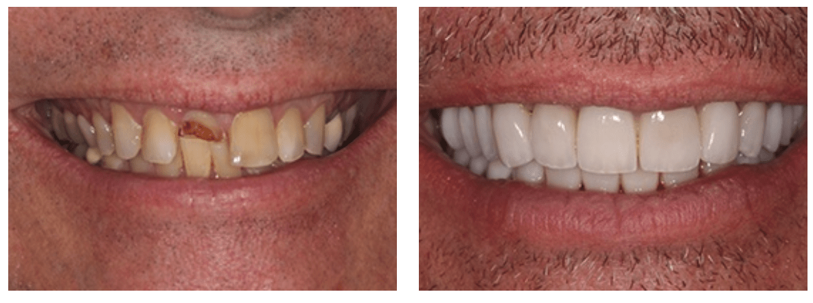 veneer before and after image of a patient who required a full smile makeover