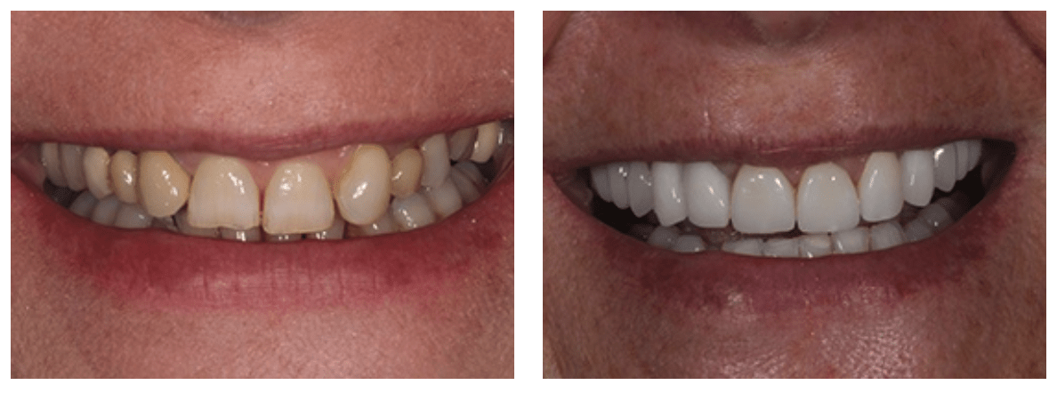 Dental implants are one of the best alternatives to loose, unstable removable dentures