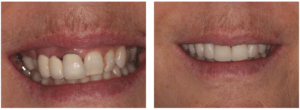 Patient receives dental implant restorative work to repair the upper jaw