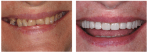 Patient required a mixture of restorative and cosmetic treatments to repair her smile