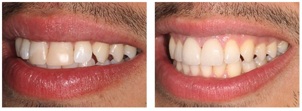 Cosmetic dentists use teeth whitening treatments to perfect the overall look of the smile