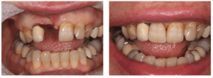 Dental client who was suffering from extreme tooth loss and decay