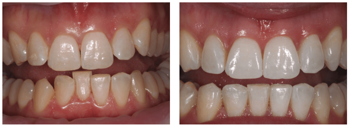 client that required invisalign to correct misaligned teeth