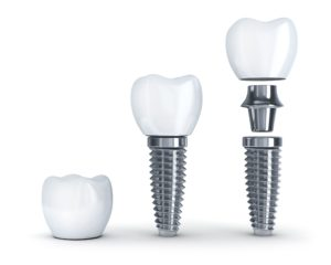 Dental implants are simple, permanent and practical. That said, its important to adopt proper aftercare to make your transition to implants as seamless as possible. Here are some of the things to look out for and how to correctly respond to each.