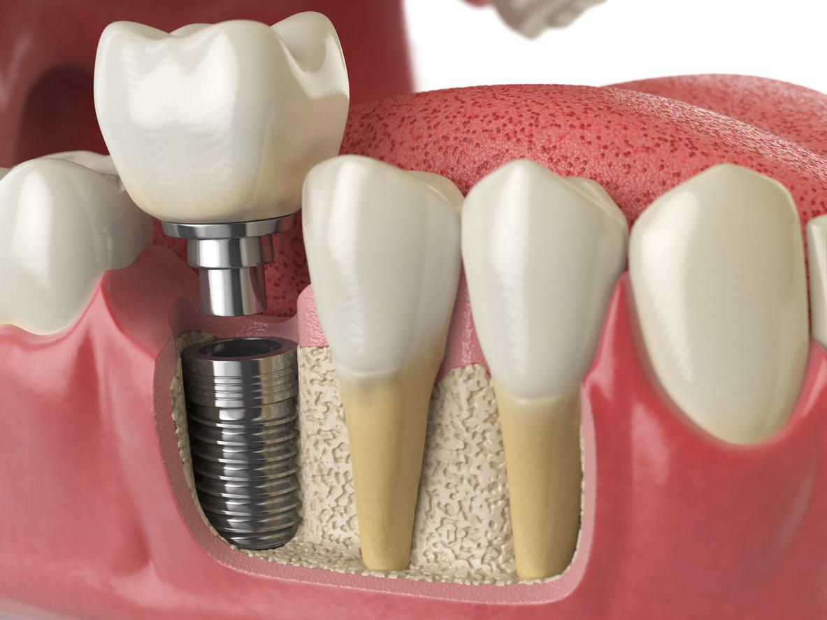 dental implants are a firm and stable way to replace missing teeth and are a popular alternative to dentures