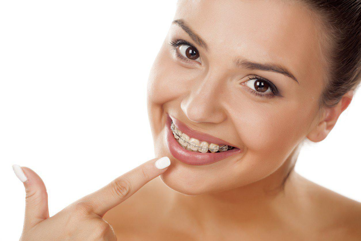 choosing between braces and invisalign
