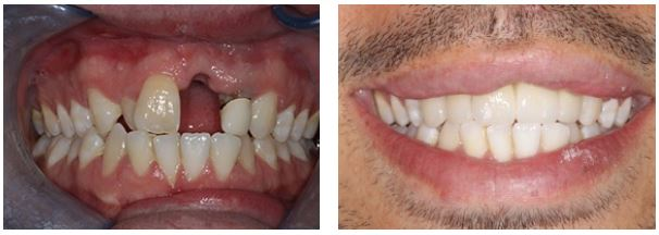 dental implants to close the gaps of missing teeth