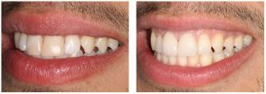 veneers are a popular choice for many patients in Roehampton