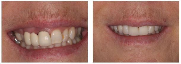 veneers hide and conceal many smile problems and imperfections