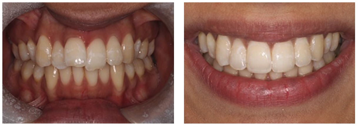 Full Mouth Restorative Work