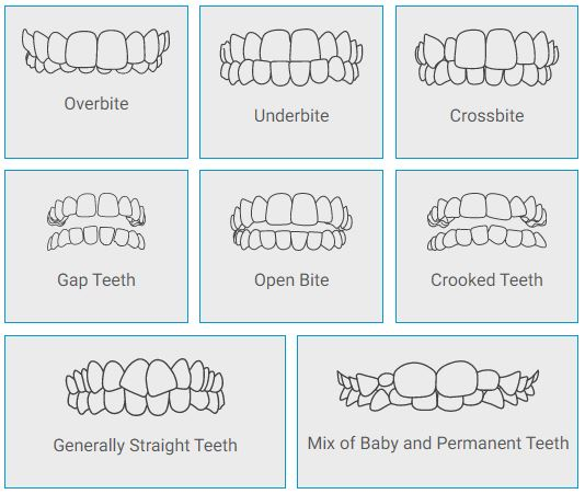 invisalign first malocclussion cases