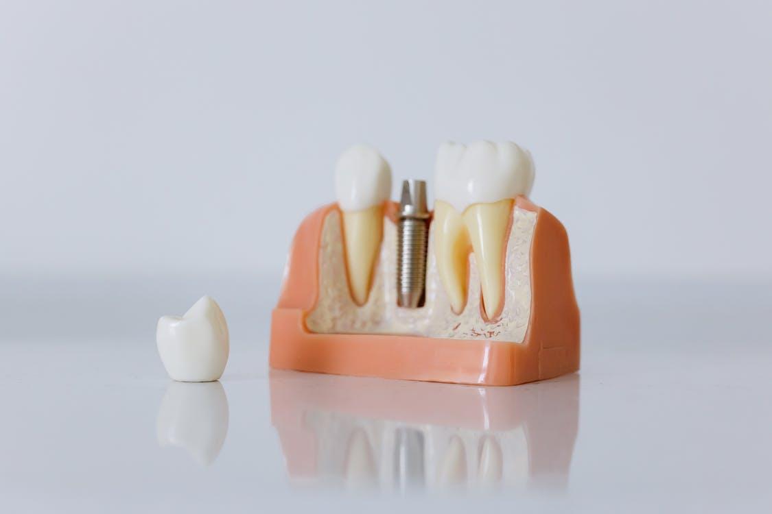 bone grafts to restore bone in the jawbone