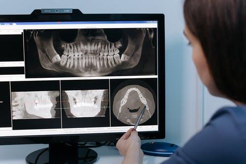 monitoring the jawbone